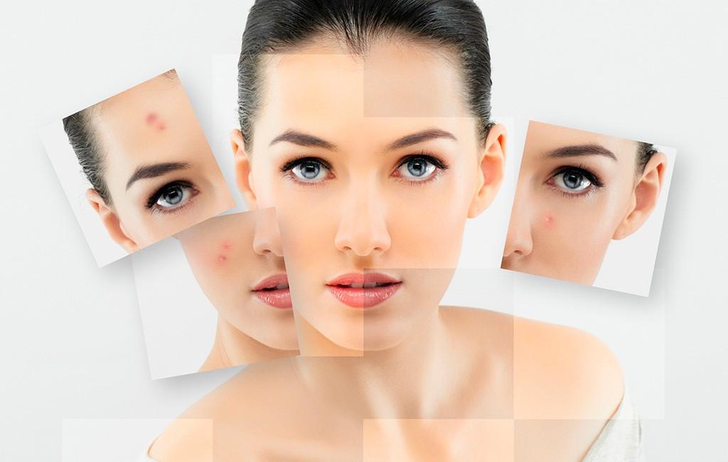 Акне – эффективное лечение проблемной кожи