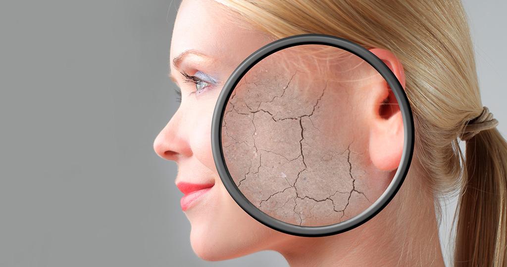 Признаки сухой кожи лица