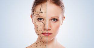 Сухая кожа лица — причины и советы по уходу