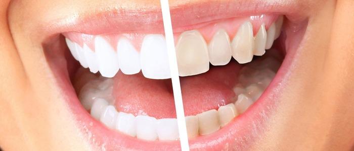 отбеливающие пластинки для зубов