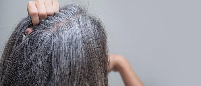что делать, если седеют волосы в 20 лет