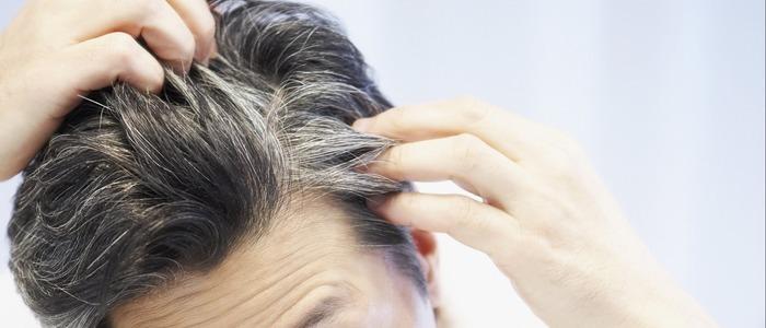 седеют волосы у девушек в 20 лет