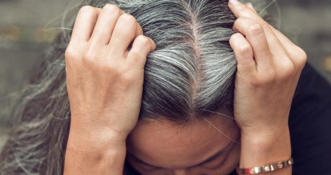 седеют волосы в 20 лет